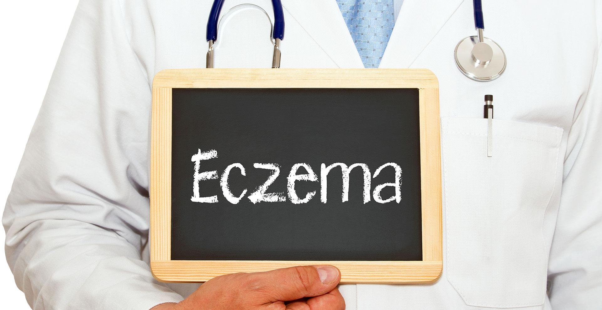 Eczema treatments bay area