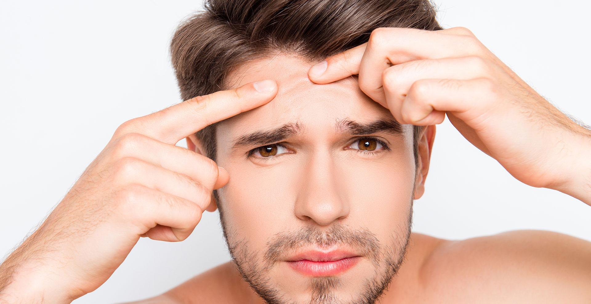 Acne Treatments Bay Area