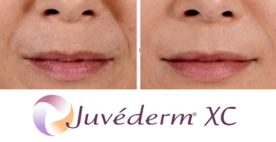 juvederm results