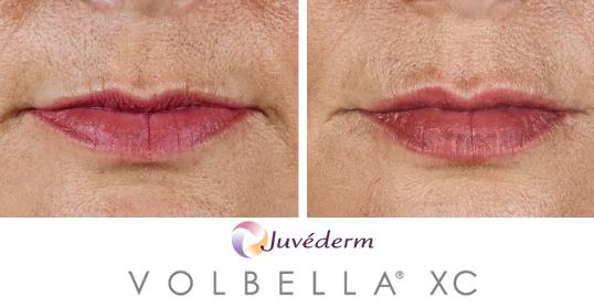 volbella results