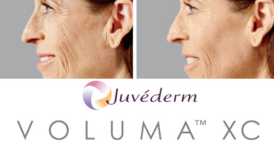 voluma results