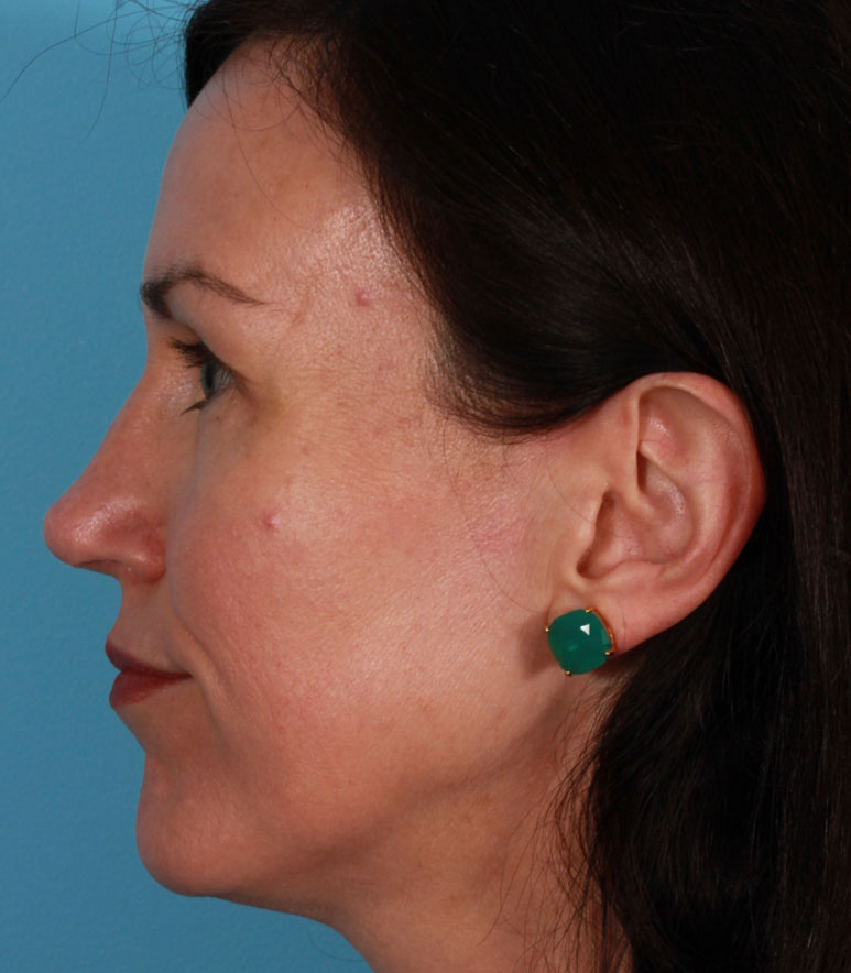 Rhinoplasty Results Walnut Creek
