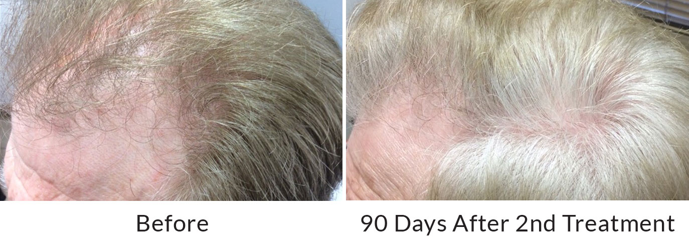 Platelet-Rich Plasma hair restoration